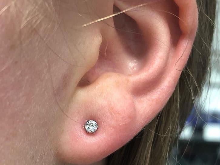 bump on ear lobe piercing