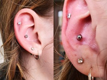 conch piercing infection