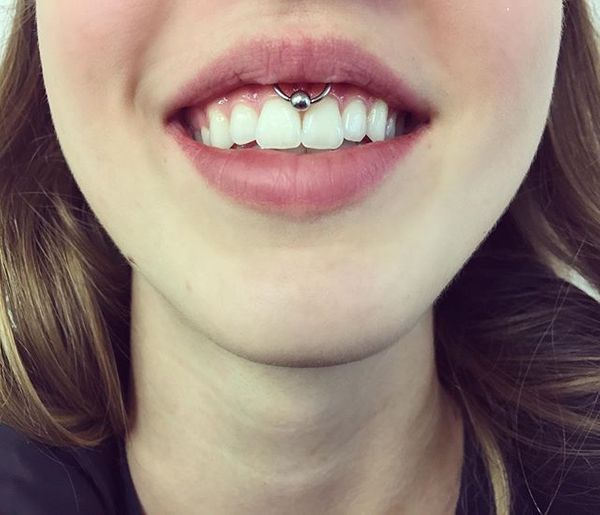 does a smiley piercing hurt
