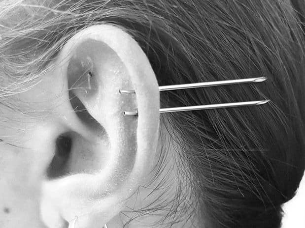 double cartilage aftercare
