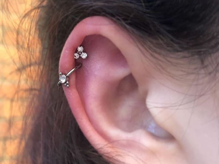 double cartilage cleaning