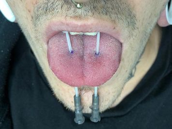 double tongue piercing procedure