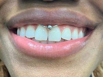 frenulum smiley piercing