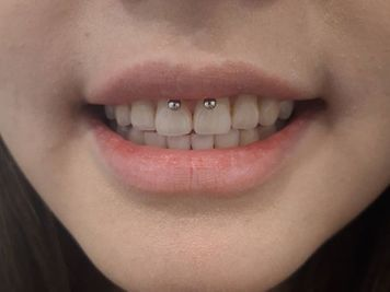 how much does a smiley piercing cost