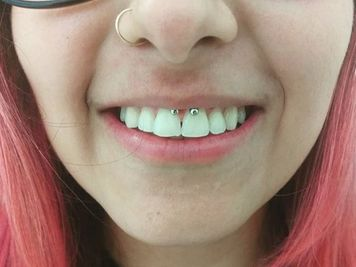 how to hide a smiley piercing