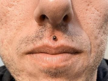 men medusa piercing