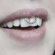 smiley piercing