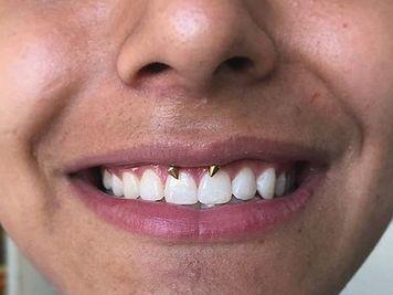 smiley rings piercing